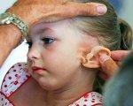 """Médico probandole a una niña su """"nueva oreja""""."""
